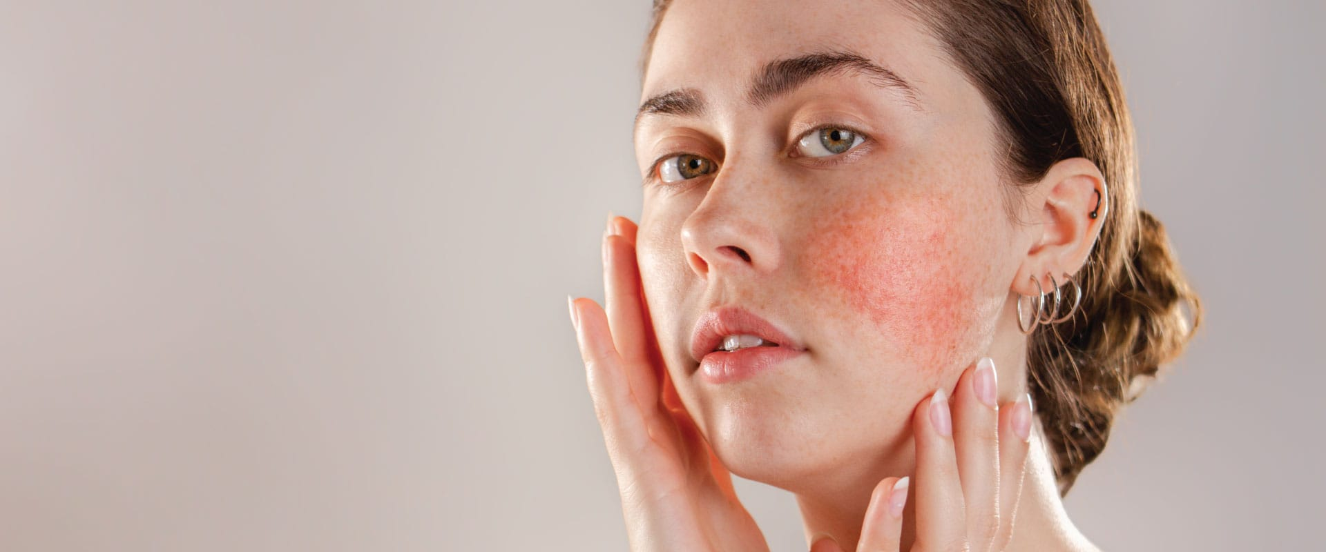 Pieles sensibles, sensibilizadas y dermatitis de contacto